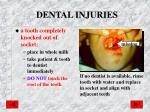 dental injuries