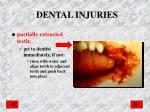 dental injuries1