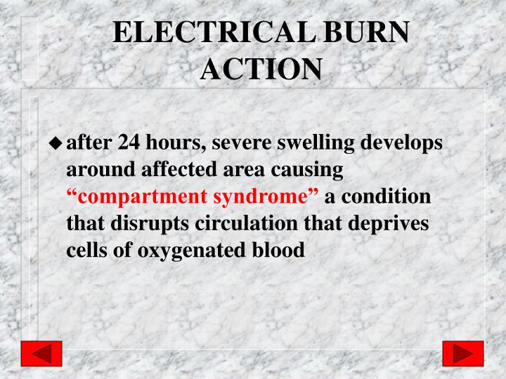 ELECTRICAL BURN ACTION