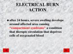 electrical burn action1