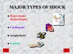 major types of shock