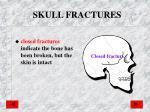 skull fractures1