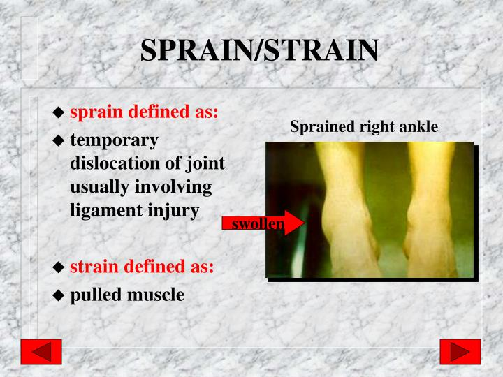 SPRAIN/STRAIN