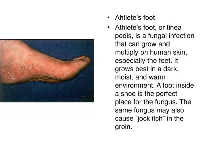 Ahtlete's foot
