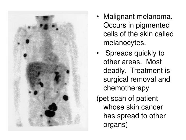 Malignant melanoma.  Occurs in pigmented cells of the skin called melanocytes.