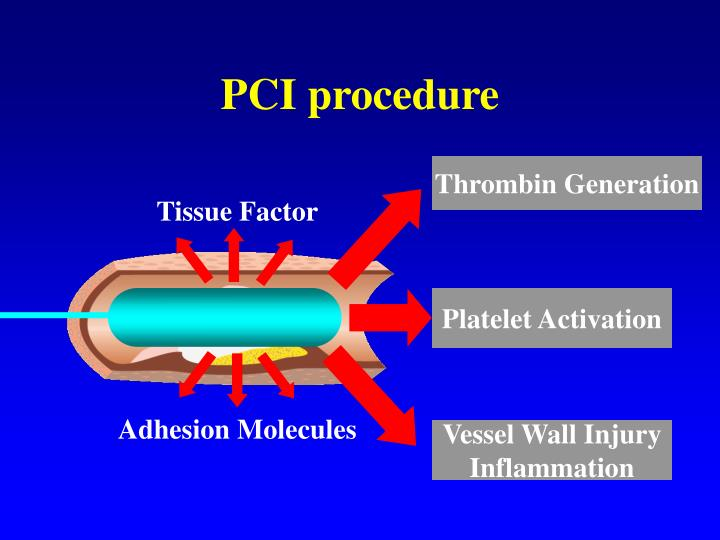 PCI procedure