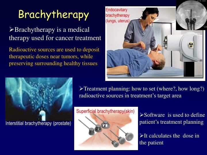Endocavitary