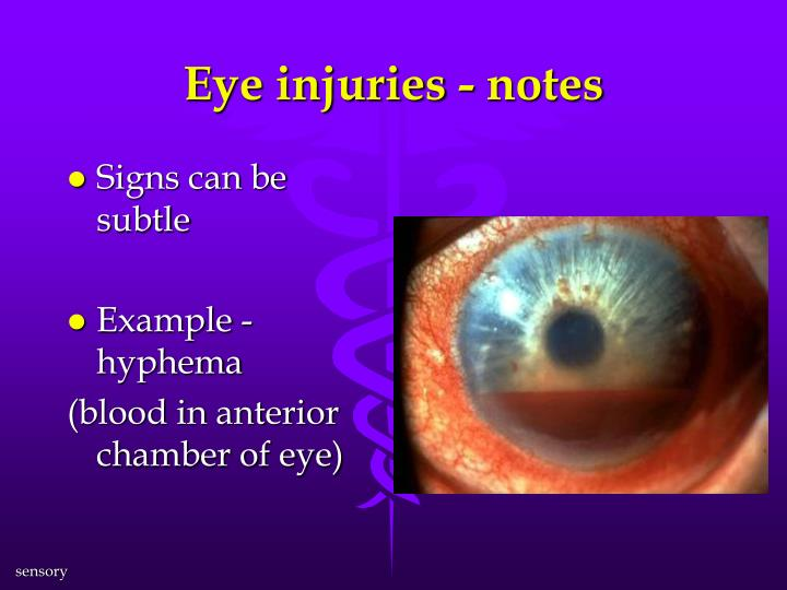 Eye injuries - notes