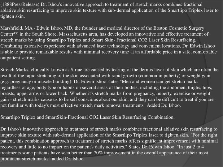 (1888PressRelease) Dr. Ishoo's innovative approach to treatment of stretch marks combines fractional...