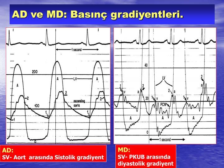 AD ve MD: Basınç gradiyentleri.