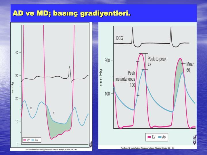 AD ve MD; basınç gradiyentleri.
