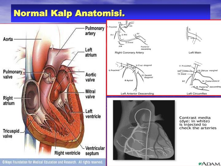 Normal Kalp Anatomisi.
