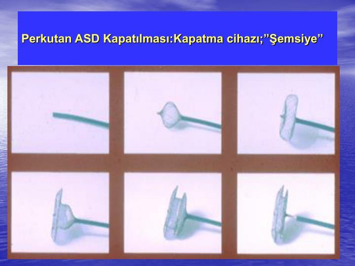 """Perkutan ASD Kapatılması:Kapatma cihazı;""""Şemsiye"""""""