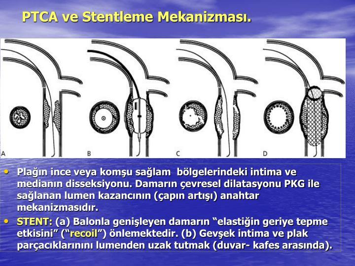 PTCA ve Stentleme Mekanizması.