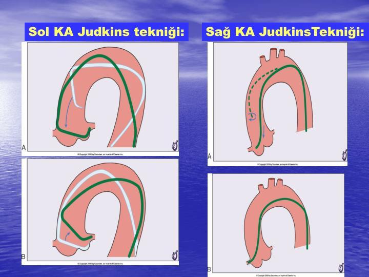 Sol KA Judkins tekniği: