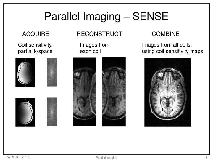 Parallel Imaging – SENSE