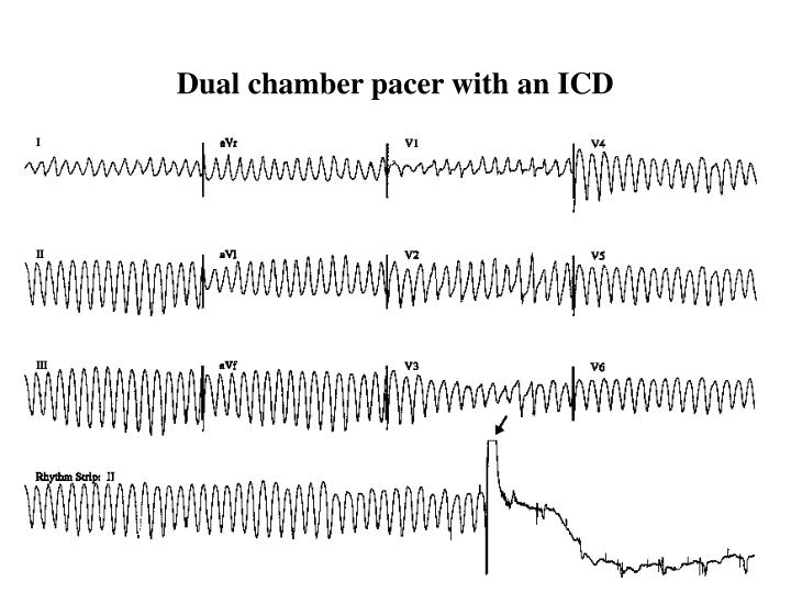 Dual chamber pacer with an ICD