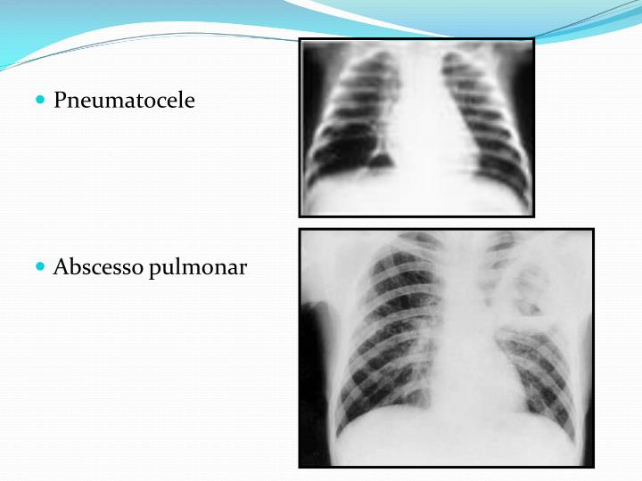 Pneumatocele
