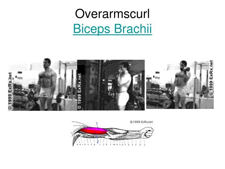 Overarmscurl