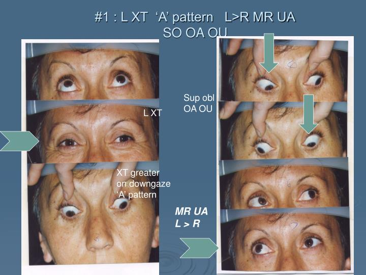 #1 : L XT  'A' pattern   L>R MR UA