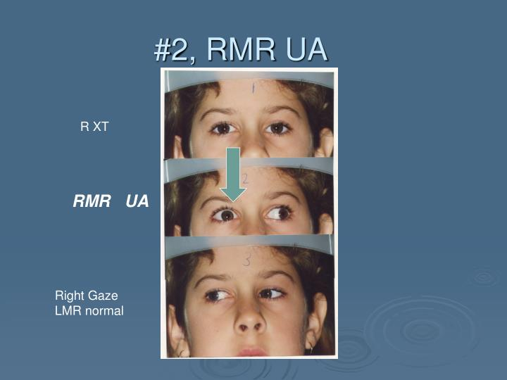 #2, RMR UA