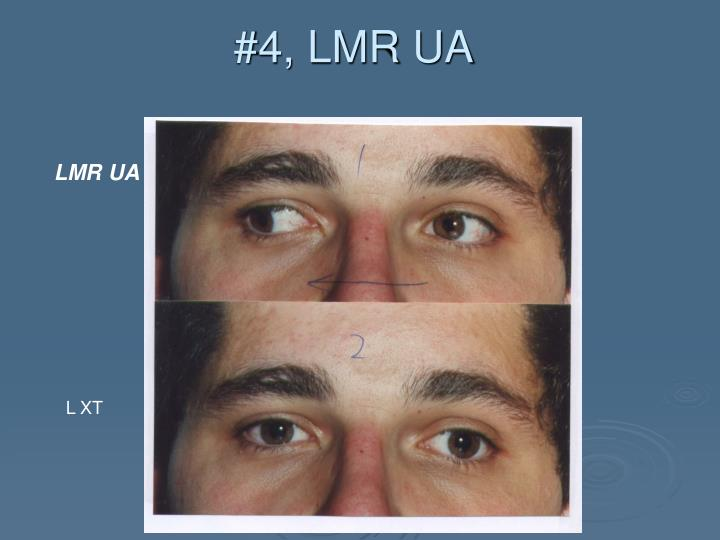 #4, LMR UA