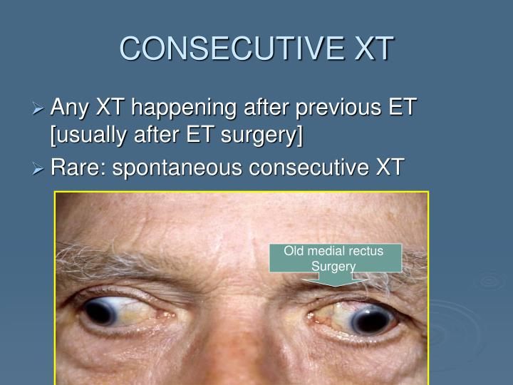CONSECUTIVE XT