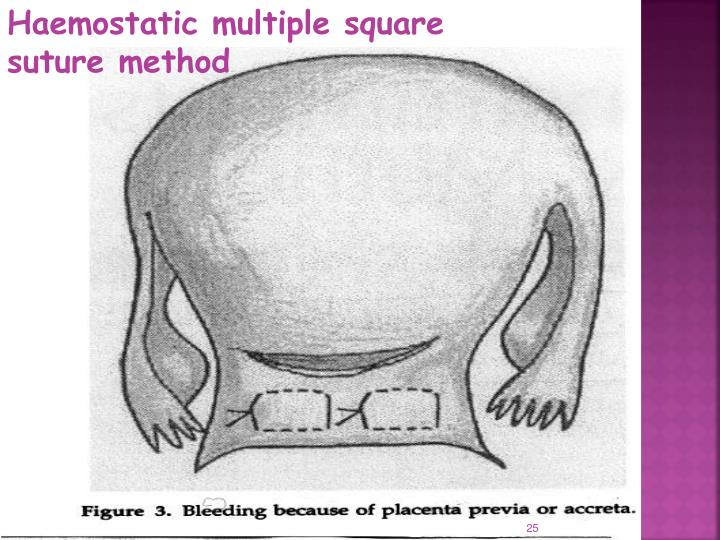 Haemostatic multiple square suture method