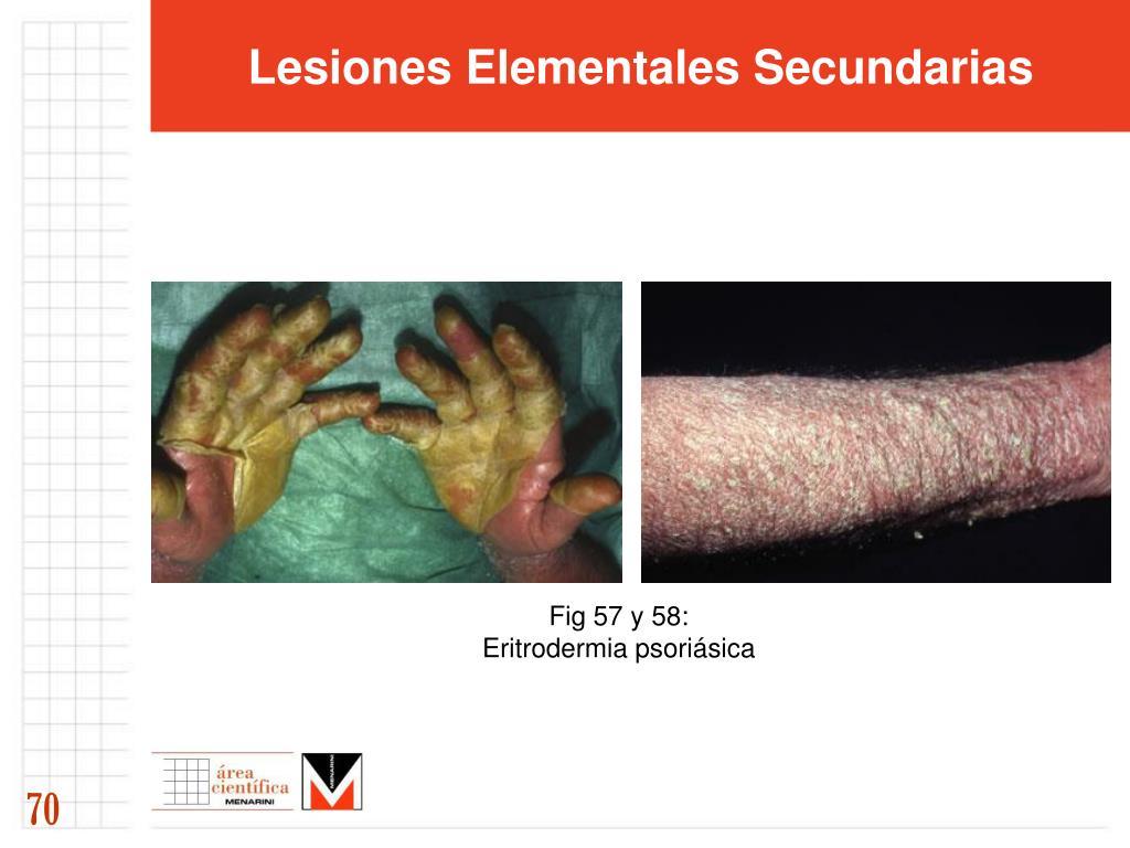 Lesiones Elementales Secundarias