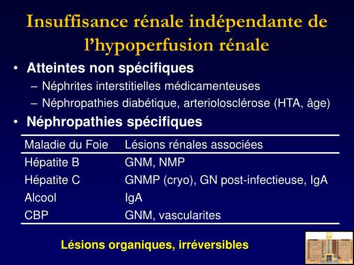 Insuffisance rénale indépendante de l'hypoperfusion rénale