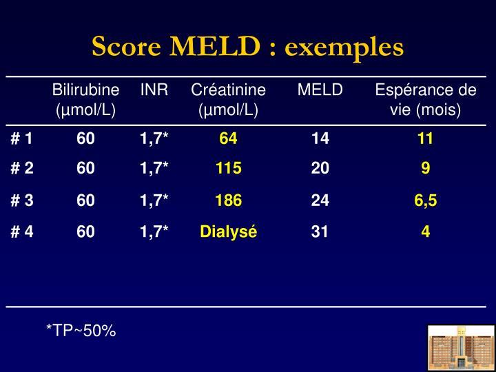 Score MELD : exemples