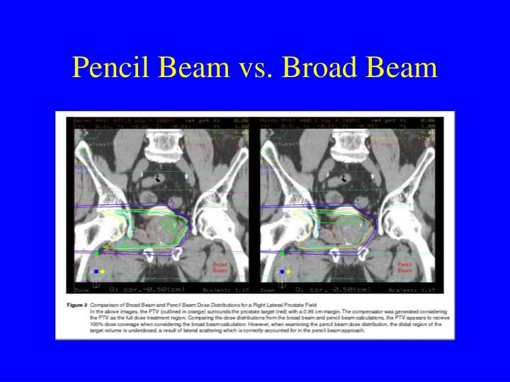 Pencil Beam vs. Broad Beam