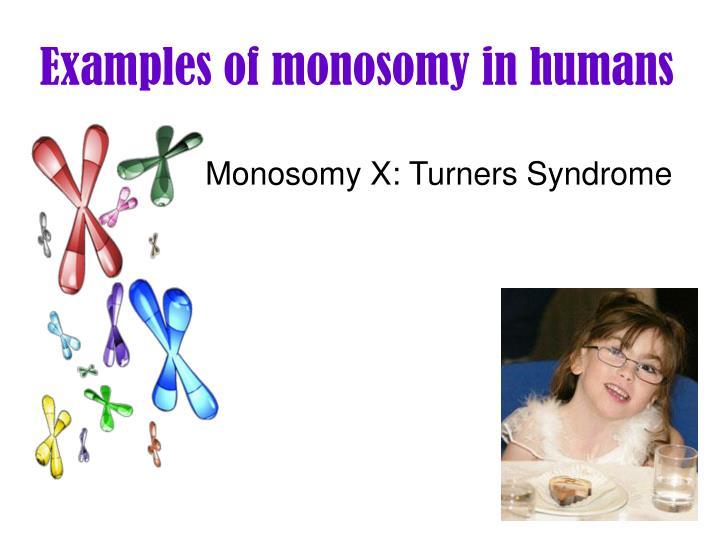 Examples of monosomy in humans