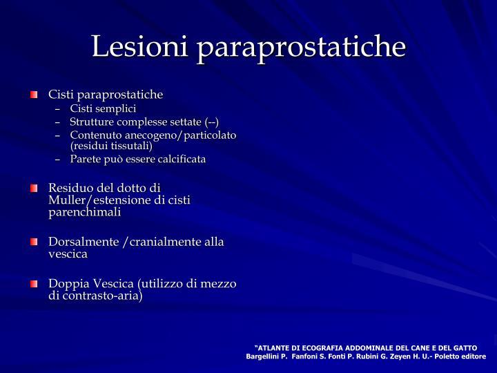 Lesioni paraprostatiche