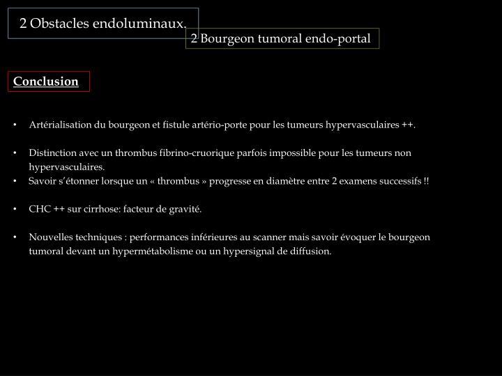 2 Obstacles endoluminaux.