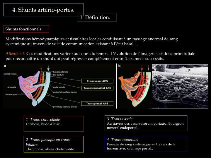 4. Shunts artério-portes.