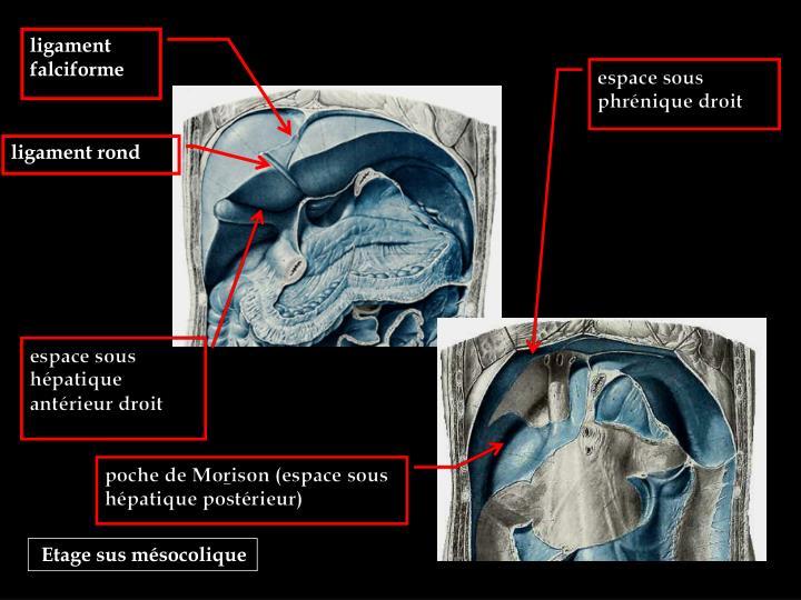 ligament falciforme