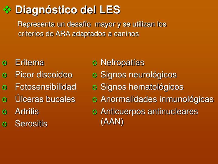 Diagnóstico del LES