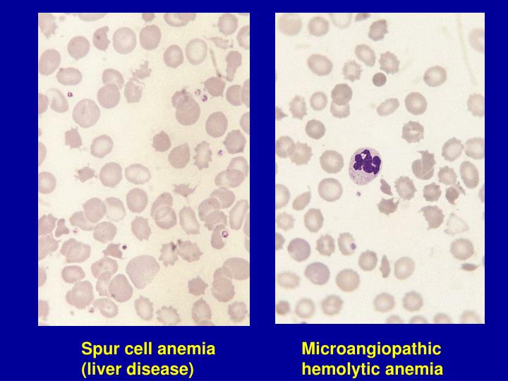 Spur cell anemia (liver disease)