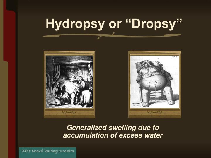 """Hydropsy or """"Dropsy"""""""