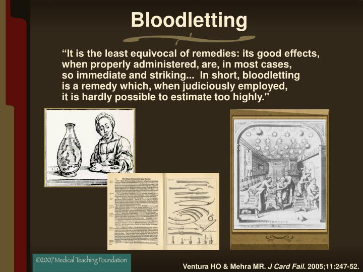 Bloodletting