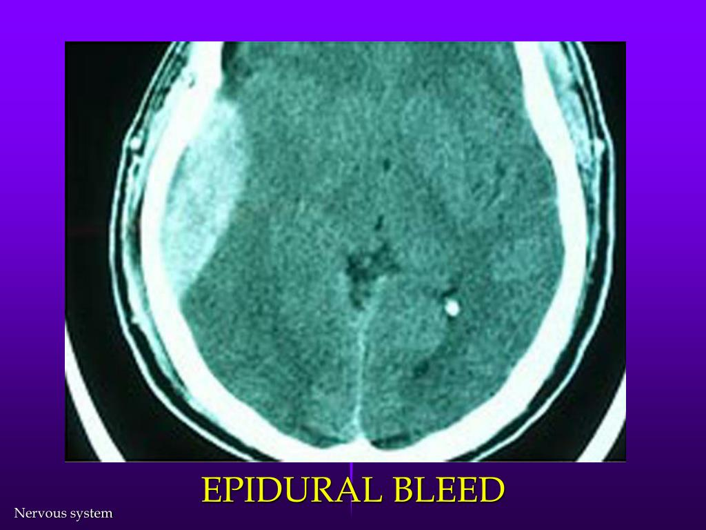 EPIDURAL BLEED