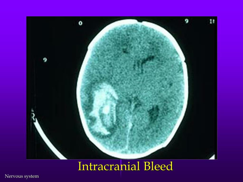 Intracranial Bleed