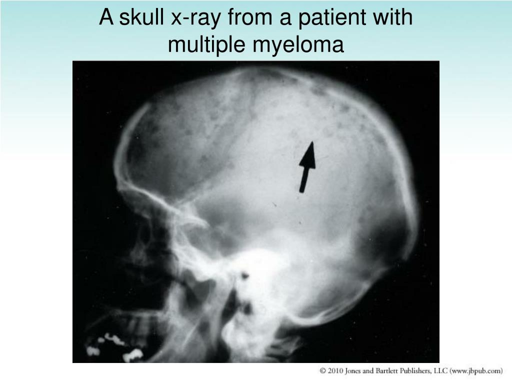 A skull x-ray from a patient with multiple myeloma