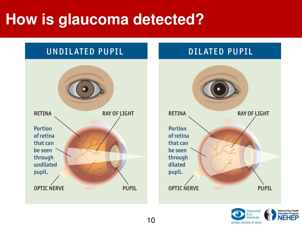 How is glaucoma detected?