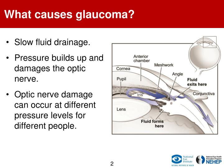 What causes glaucoma