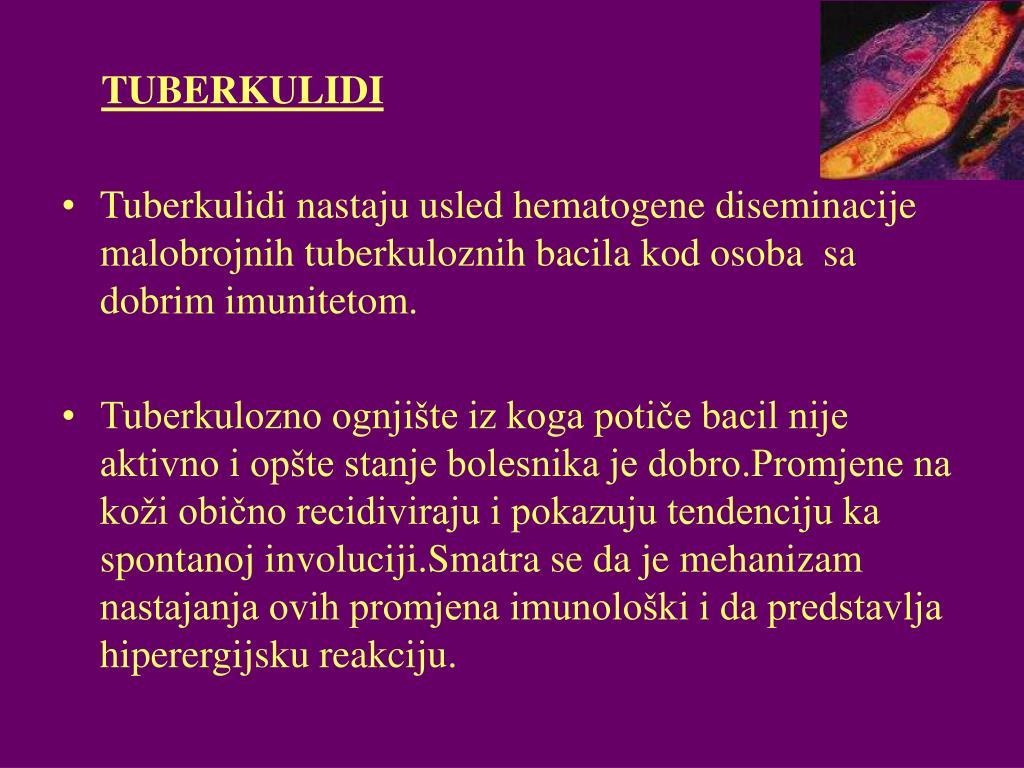 TUBERKULIDI
