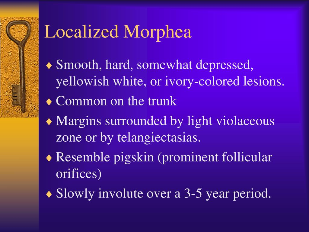 Localized morphea