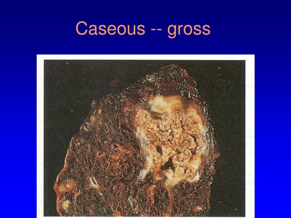 Caseous -- gross