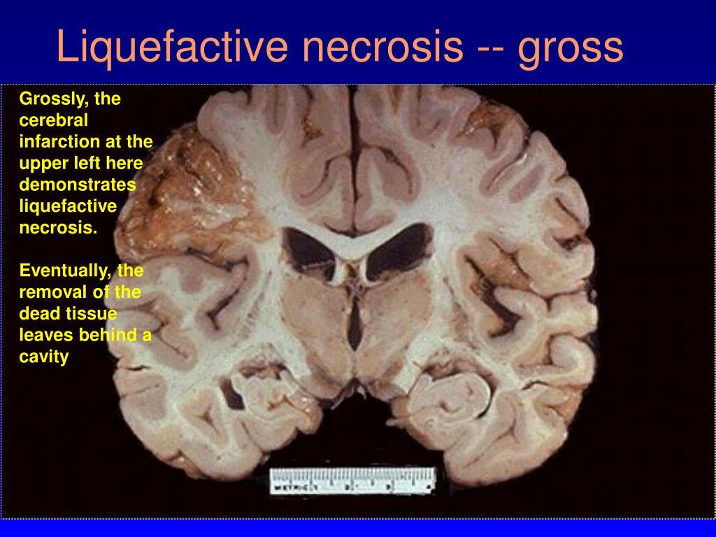 Liquefactive necrosis -- gross